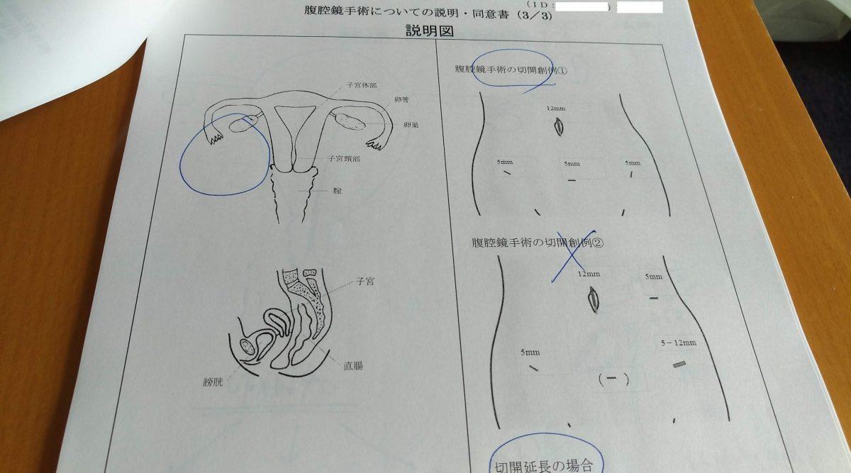 卵巣嚢腫 腹腔鏡手術の概要